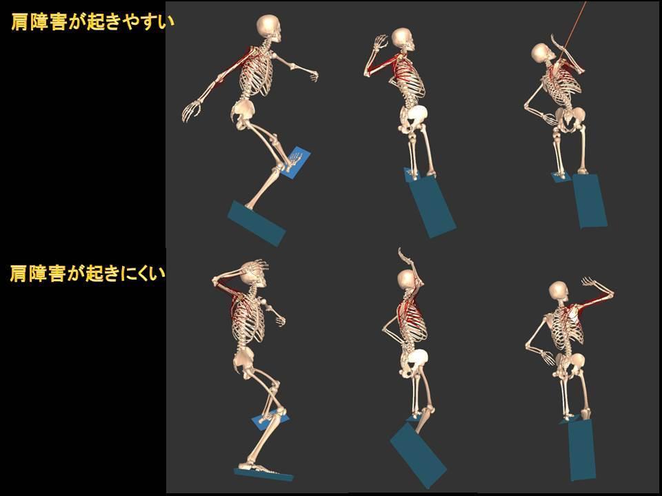 図3 肩の痛みがでやすいフォームとできにくいフォーム