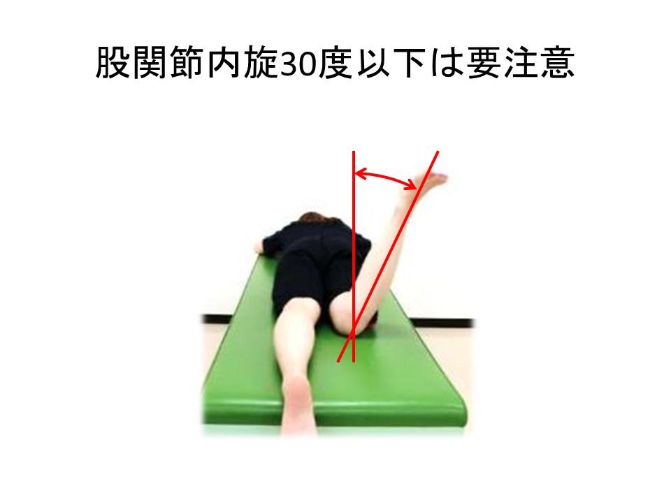 股関節内旋