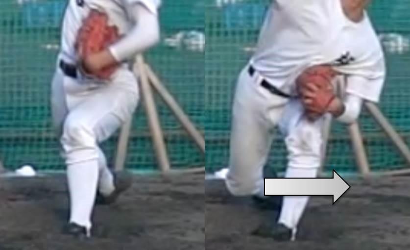膝の横割れ
